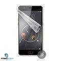 Obrázok pre výrobcu Screenshield™NUBIA M2 Lite NX573J fólie na displej